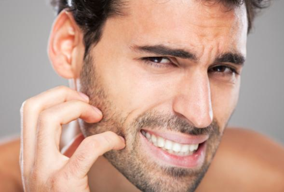 Electric Shavers for Sensitive Skin